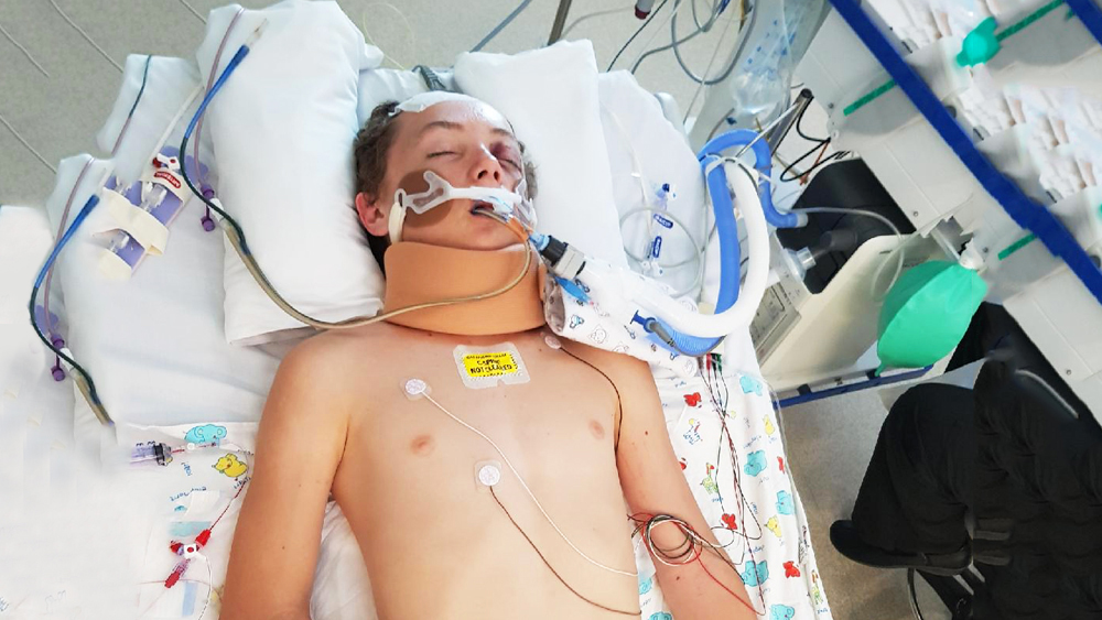 Tristan Sik after the accident that nearly killed him.